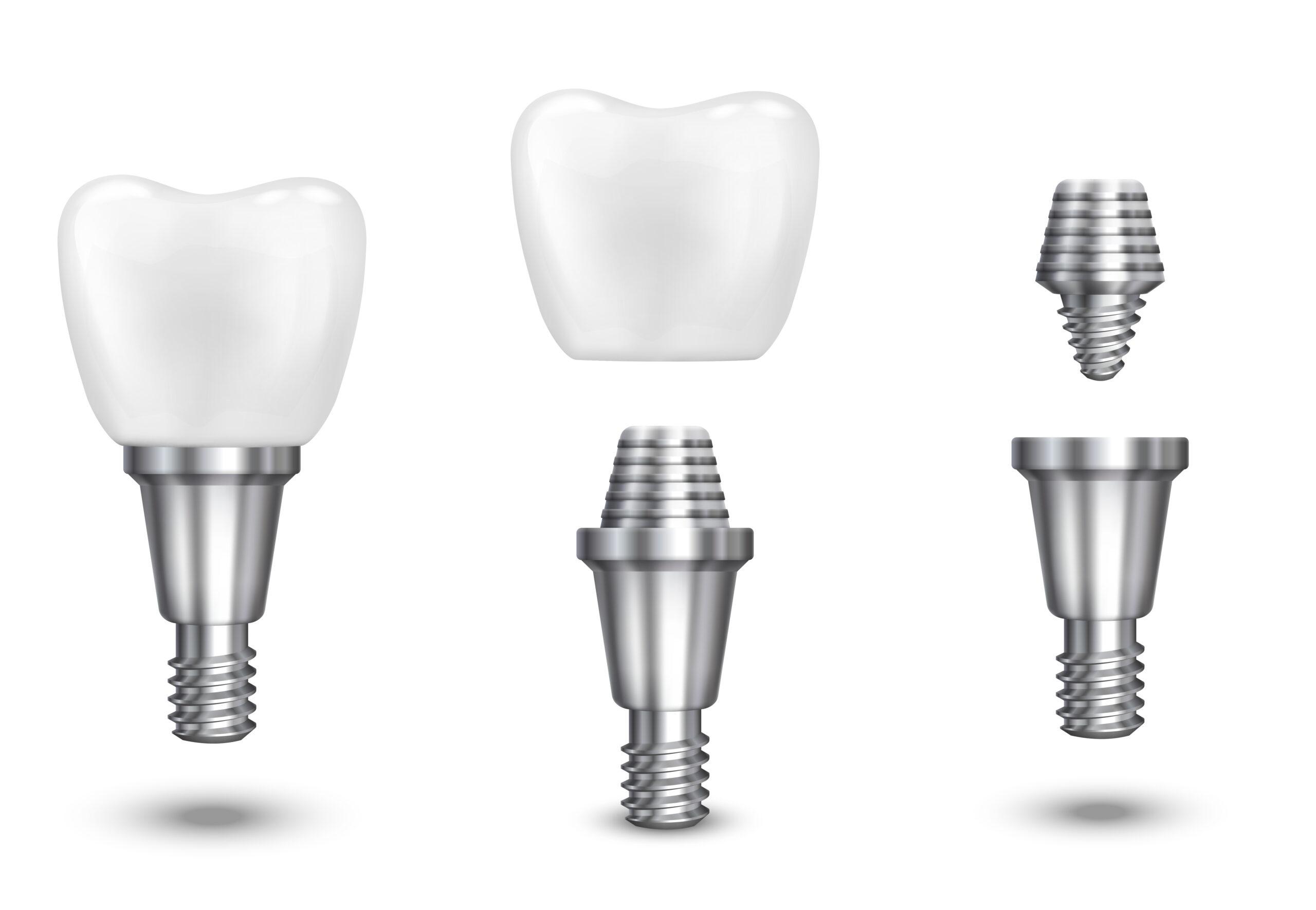 Dental Osseointegrasyon