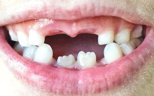Diş Eksikliği ve Tedavileri