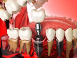 Diş İmplant Ameliyatı